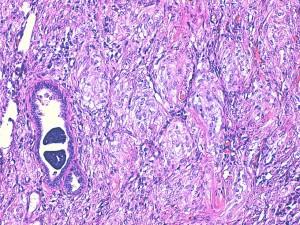 Photos 18 : carcinome et myoépithélioma malin, HE X200 (photos LAPVSO).