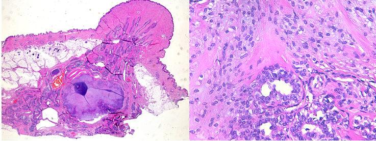 Photos 1 & 2 : à gauche, adénome mammaire complexe dans le tissu glandulaire mammaire sous le mamelon, HE, X1; à droite : association de deux composantes, l'une épithéliale et tubulaire, l'autre myoépithéliale et fusiforme au sein d'un adénome mammaire complexe (photos LAPVSO).