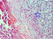 Photo 2 : HE X200 agrandissement d'un granulome: fibres de collagène dégénérées et minéralisées (étoile rouge) entourées par des macrophages, éosinophiles et lymphocytes (étoile bleue)