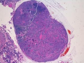 Fig 14 : Cancer mammaire inflammatoire : métastase au sein du lymphocentre de drainage (HE X 20) .