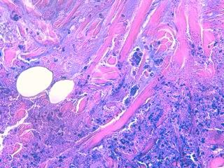 Fig 9 :  Dans le derme juste sous la concrétion de matériel nécrotique, on observe des fibres de collagène très acidophiles, entourées d'éosinophiles dégranulés suggérant des images en flammèches (synonymie foyers de dégranulation des granulocytes éosinophiles). Ces fibres peuvent être orientées verticalement (elles sont perpendiculaires à l'épiderme) et semblent s'éliminer au travers du plancher épithélial de la cupule (élimination transépithéliale) (HE X 400).