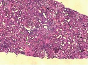 Photo 4 : Atteinte glomérulaire majeure avec fibrose segmentaire et adhérence à la capsule de Bowman (flèche noire), glomérulosclérose (tête de flèche) et protéinurie (flèche vertes)(photo Dr M. Fine).