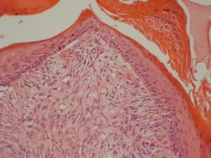 Photo 3 : Sarcoide équin (x100, H&E), les cellules tumorales sont alignées le long de l'épiderme