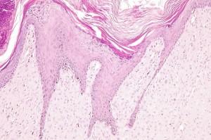 Photo 8 : Sarcoide félin (x100, H&E), les cellules tumorales sont alignées le long de l'épiderme hyperplasique et intimement associés à l'épiderme.