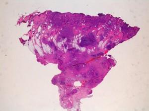 Carcinome de type inflammatoire HE X2