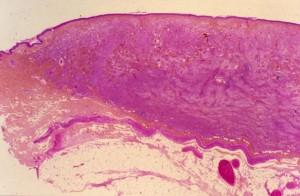Mastocytome cutané dermique (HE x25)